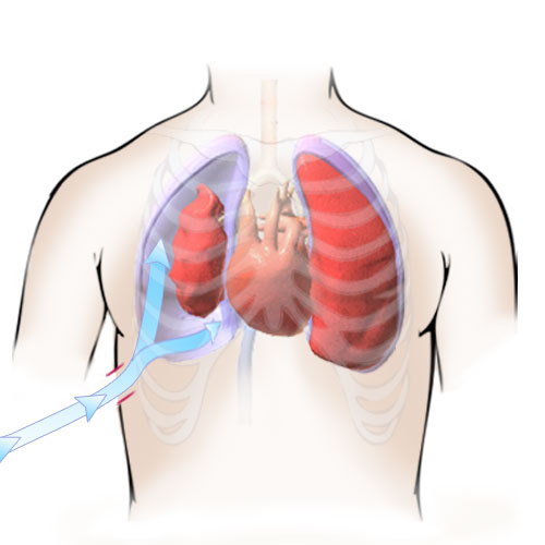 A medical illustration to demonstrate treatment of an open pneumothorax caused by an open wound in the lungs. Used as an instructional graphic aid in an interactive electronic combat training course for medics in the U.S. Marine Corps.